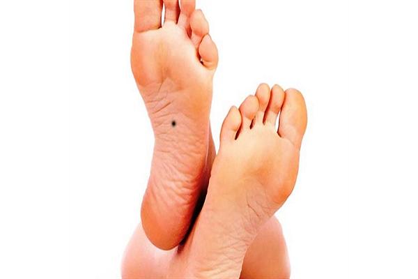 Nốt ruồi ở chân nam và nữ nói lên điều gì?
